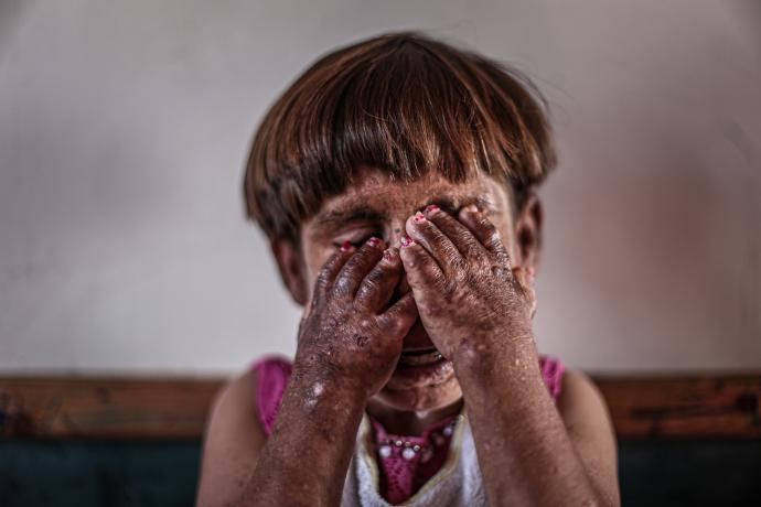11-year-old-meryem-with-pemphigus-waits-for-help_5680_l.jpg